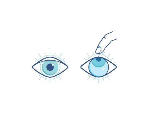 Ojo mirando hacia arriba con el dedo sacando los lentes de contacto