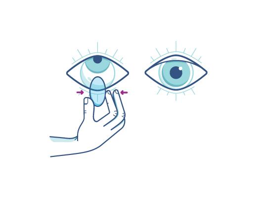 Apretando suavemente el lente para quitarse el lente de contacto