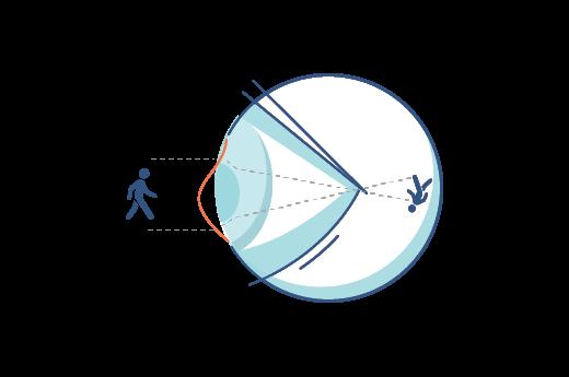 Ilustración de una córnea irregular.