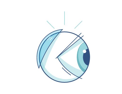 Lentes de contacto detrás de un globo ocular