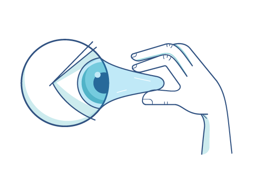 Extracción de lentes de contacto de un ojo