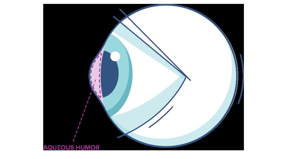 Ilustración que muestra el  Humor acuoso y Humor Vítreo del ojo