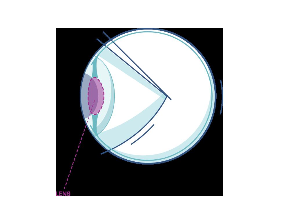 Ilustración que muestra el lente del ojo.