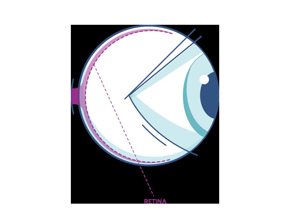 Ilustración que muestra la retina del ojo.