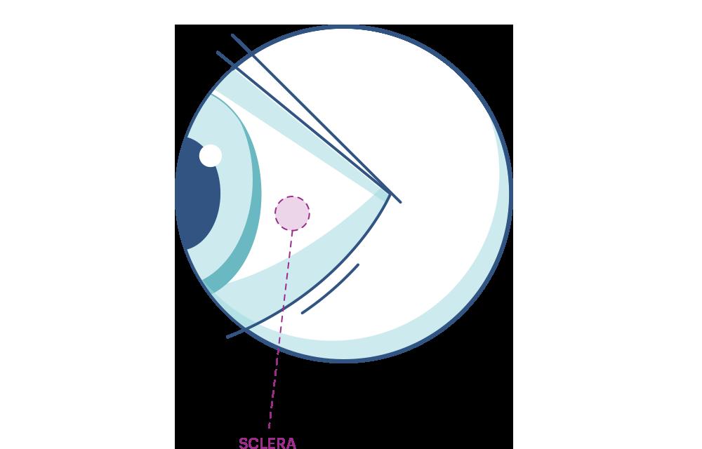 Ilustración de ojo mostrando la esclerótica